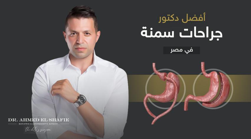 افضل دكتور جراحة سمنة في مصر