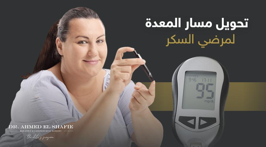 عملية تحويل المسار لمرضى السكر