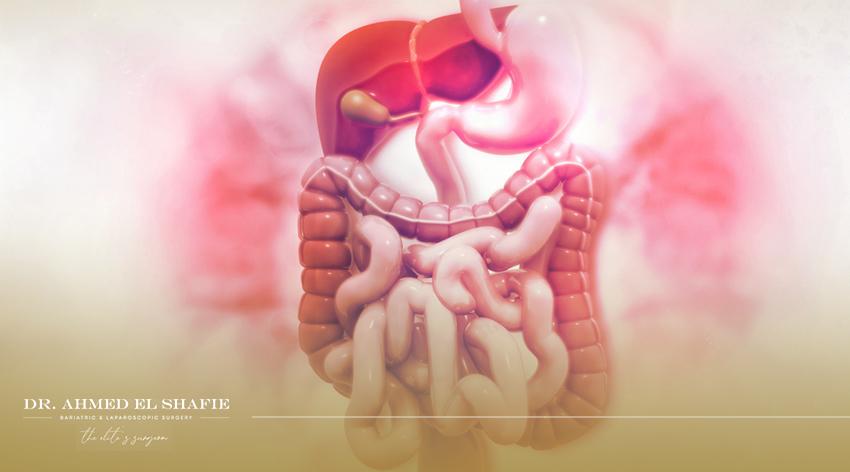 جراحات الجهاز الهضمي