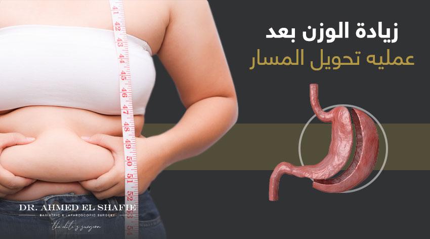 زيادة الوزن بعد عملية تحويل مسار المعدة