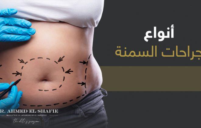 انواع جراحات السمنة